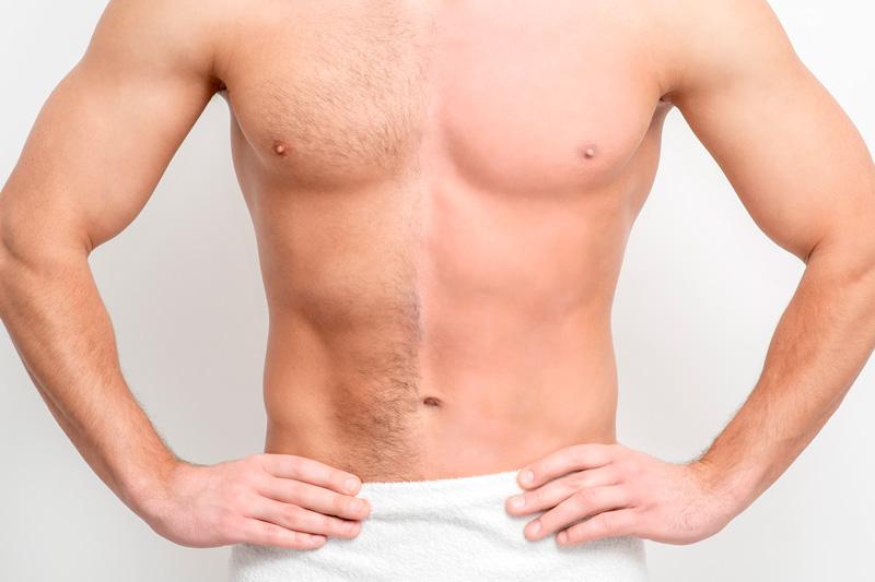 L'efficacité dépend pour beaucoup du type de peau, du type de poils, mais aussi de l'âge